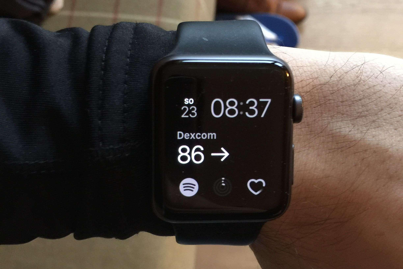 Blutzucker Apple Watch